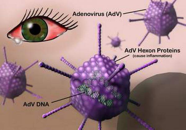 Con đường lây nhiễm viêm kết mạc mắt