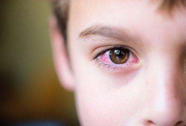dấu hiệu viêm kết mạc mắt
