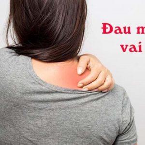 Làm gì để giảm bớt các triệu chứng đau vai gáy?