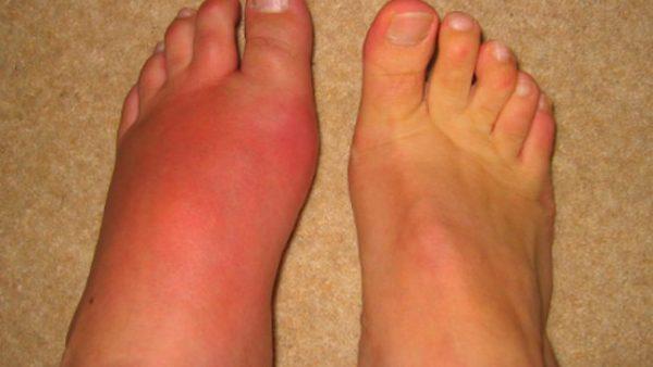 Nguyên nhân đau nhức mu bàn chân