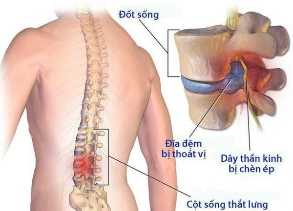 nguyên nhân đau ngang thắt lưng