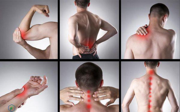 Các bệnh lý người trẻ có thể mắc phải khi bị đau nhức xương khớp