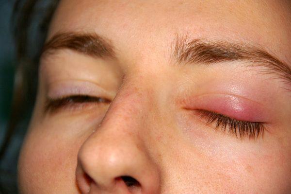 Nguyên nhân mí mắt bị sưng và ngứa