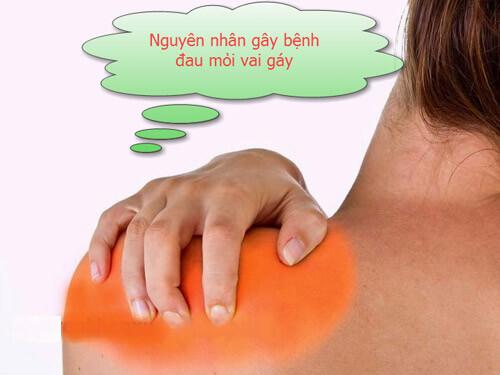 nguyên nhân gây đau mỏi vai gáy