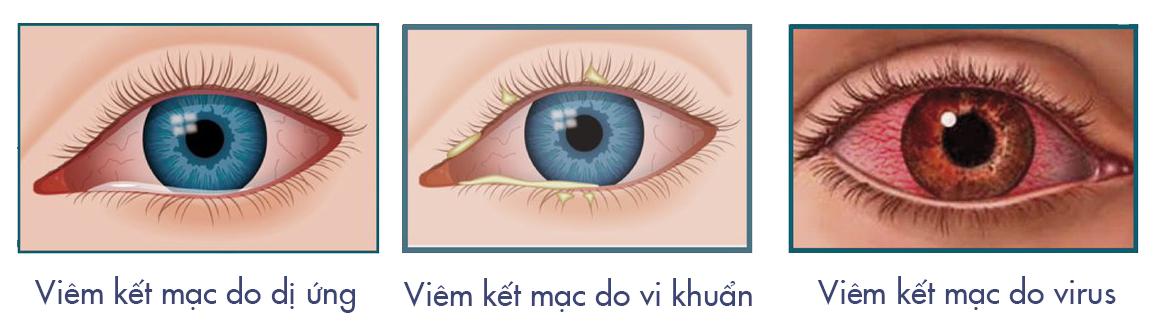 nguyên nhân gây viêm kết mạc mắt
