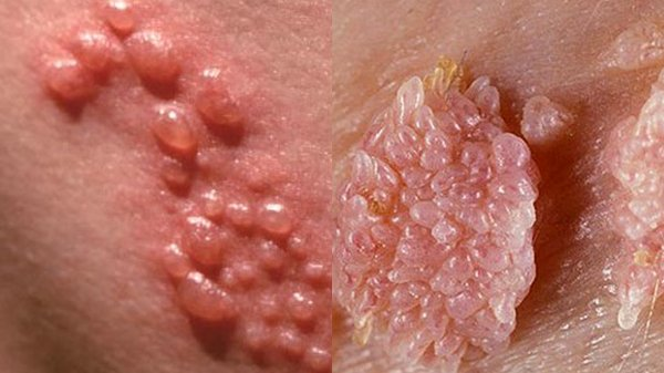 Sùi mào gà là một trong những bệnh lậu hay gặp ở nam giới qua hoạt động quan hệ tình dục không an toàn