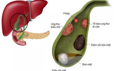 Điều trị Polyp túi mật không phải khi nào cũng cần cắt bỏ