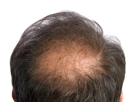 Rụng tóc ở đỉnh đầu thường gặp ở nam giới, nguyên nhân có thể do lượng testosterone trong cơ thể tăng cao