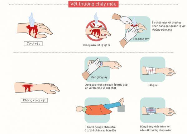 Biện pháp sơ cứu cầm máu
