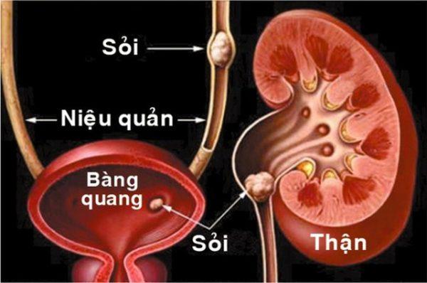 sỏi đường tiết niệu gây cọ sát và chèn ép đường tiết niệu gây triệu chứng tiểu buốt, tiểu rắt