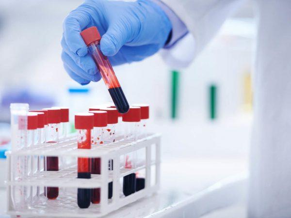Xét nghiệm tổng phân tích tế bào máu cho biết điều gì