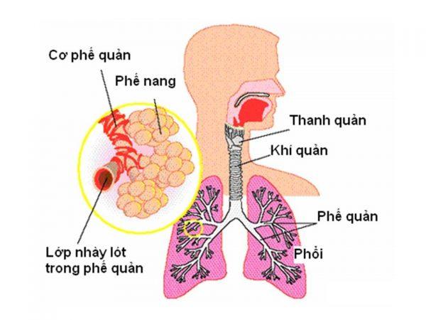trẻ sơ sinh bị đờm ở cổ họng lâu ngày có thể do bé mắc phải các bệnh lý đường hô hấp như hen phế quản, viêm phế quản, viêm phổi,...