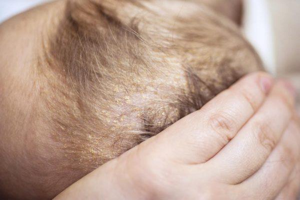 Viêm da tiết bã là bệnh gì? Cách chữa trị ra sao?