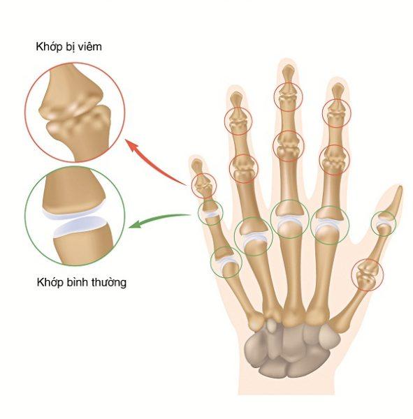viêm khớp ngón tay gây đau khớp ngón tay