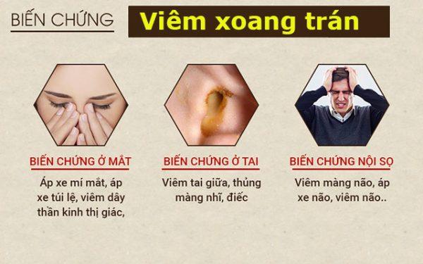 Bệnh viêm xoang trán gây đau nhức hốc mắt. (ảnh minh họa)
