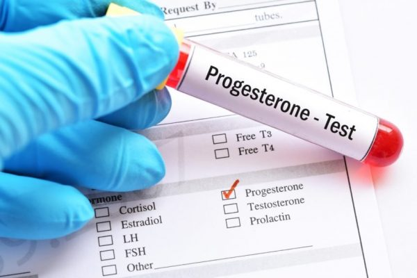Xét nghiệm Progesterone