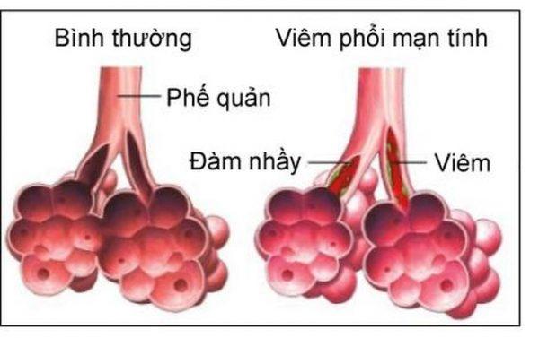 cảm lạnh có thể gây biến chứng viêm phế quản và chuyển sang viêm phổi rất nhanh.