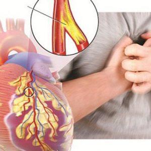 Bệnh hở van tim có nguy hiểm không? Xử trí như thế nào?