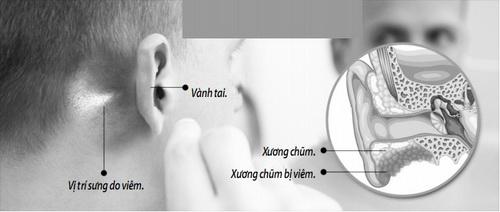 viêm tai xương chũm có nguy hiểm không