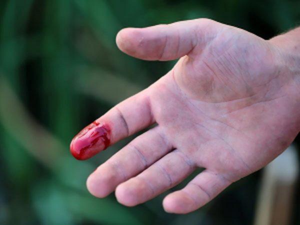 Cách cầm máu khi bị đứt tay