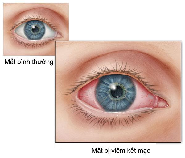 viêm kết mạc mắt ở trẻ em. (ảnh minh họa)