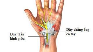 hội chứng ống cổ tay gây đau nhức tay