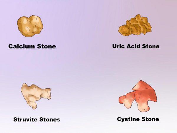sỏi Những người mặc bệnh gout có thể dẫn đến sỏi thận acid uric