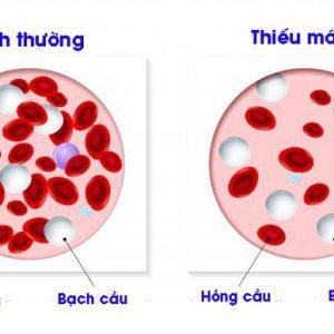 Thể tích trung bình hồng cầu là bao nhiêu?