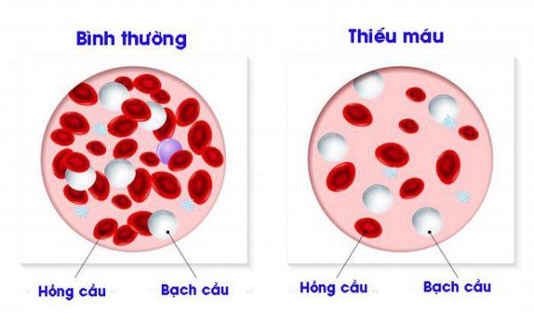 thể tích trung bình hồng cầu thấp