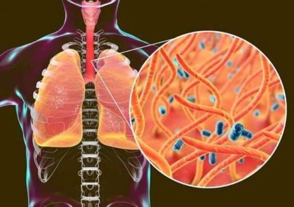 ho gà ở trẻ em do vi khuẩn Bordetella pertussis gây ra và rất dễ lây lan qua đường hô hấp như ho, hắt hơi