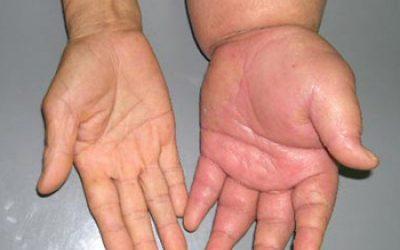 Tay bị sưng phù và đau là bệnh gì?