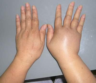 phù mạch bạch huyết gây sưng tay