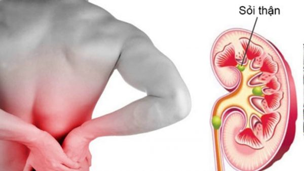 Sỏi thận gây đau bụng như thế nào?