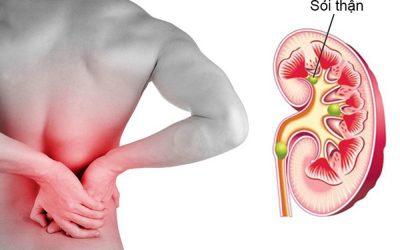 """Đau hông bên phải """"coi chừng"""" mắc những bệnh sau"""