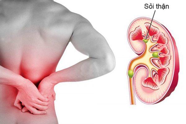 Bệnh sỏi thận(phải) hoặc một số bệnh lý về thận có thể gây tình trạng đau hông bên phải. (ảnh minh họa)