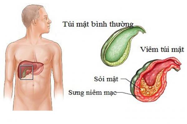 Sỏi túi mật hình thành do bất thường trong quá trình sản xuất dịch mật, ứ trệ dịch mật, viêm đường mật và nhiễm trùng dịch mật... (ảnh minh họa)