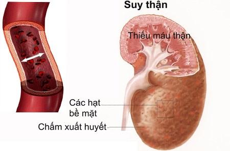 suy thận do viêm đường tiểu