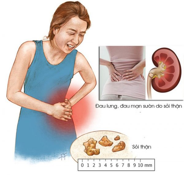 Phân biệt đau do sỏi thận và đau ruột thừa