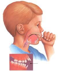 trẻ mút tay gây biến dạng răng, hàm