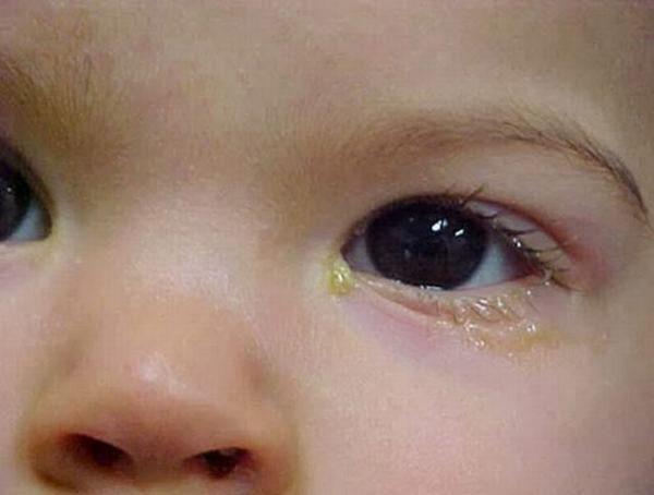 viêm bờ mi gây gỉ mắt bất thường