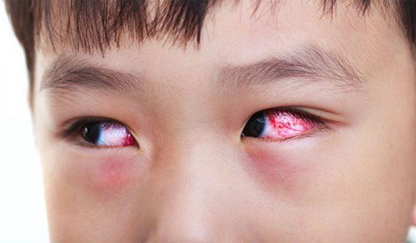 dấu hiệu trẻ bị viêm kết mạc mắt