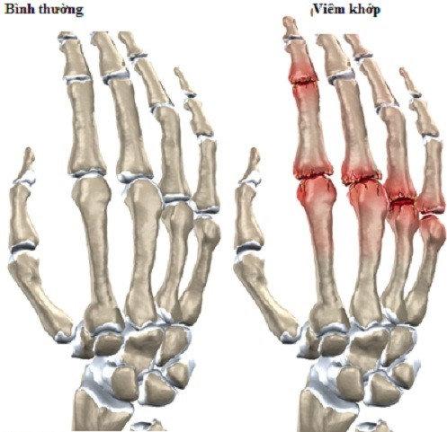 đau nhức ngón tay do viêm khớp ngón tay