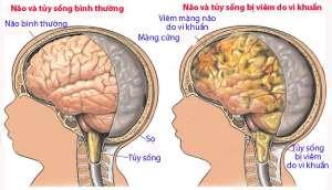 viêm màng não mủ ở trẻ em