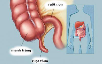 Viêm ruột thừa và những điều liên quan bạn cần biết