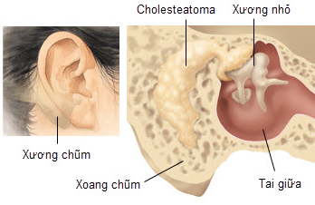 viêm tai xương chũm ở trẻ em