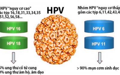 Điều trị HPV như thế nào?