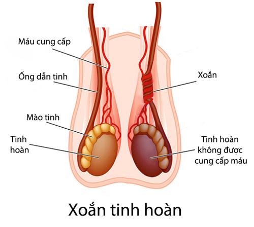 xoắn tinh hoàn ở trẻ em không được xử trí kịp thời có thể phải cắt bỏ tinh hoàn