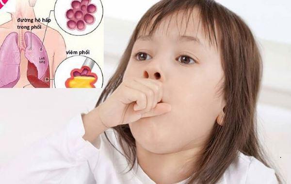 đừng lơ là với bệnh viêm phổi ở trẻ
