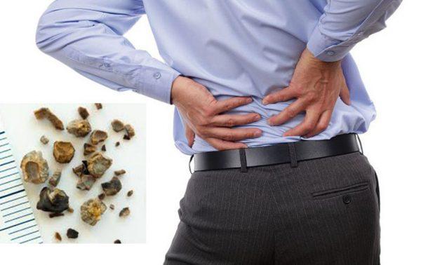 Thói quen nhịn tiểu có thể là nguyên nhân gây sỏi tiết niệu
