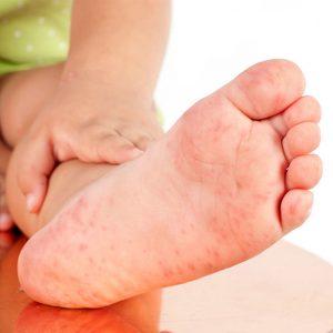 Bé bị nổi mẩn đỏ ở chân và tay là bệnh gì?
